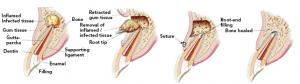 apicectomia operazione chirurgica