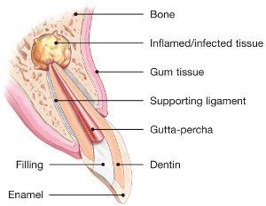 apicectomia1