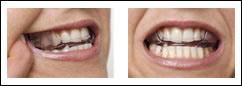 apparecchio ortodontico fisso o mobile