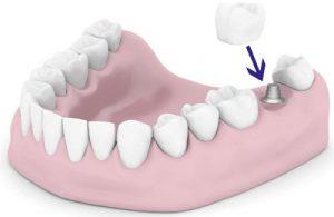 quanto costa una capsula ai denti