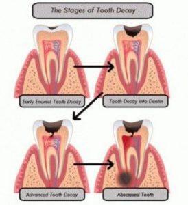 carie dentale e dolore