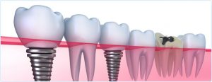 dente-ricostruito
