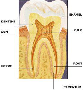 ricostruzione chimica dei denti
