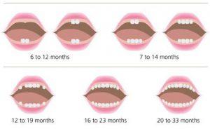 eruzione denti