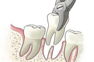 estrazione radici dentali