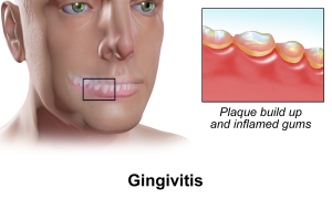 sintomi gengivite