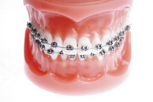 Odontoiatria estetica e protesi dentaria
