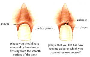 Detartraggio eliminazione e pulizia del tartaro dentale