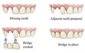 ricostruzione denti con i ponti