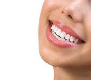 trattamenti per avere i denti bianchi
