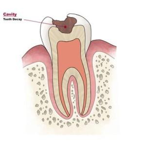 carie-dentaria1