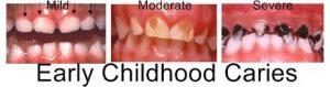 carie denti da latte