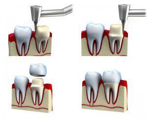 dente a perno