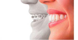 correzione-denti1