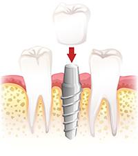 dentecc