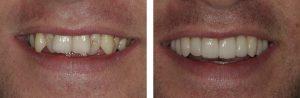 denti-storti