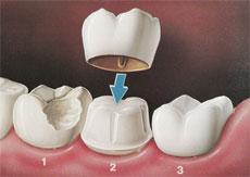 denti-zirconio