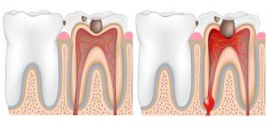 doloe denti