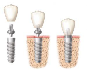 impianti-dentali1