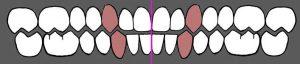 occlusione-dentale