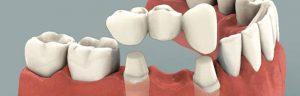 ponte-denti