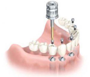 protesi dentarie per denti totali