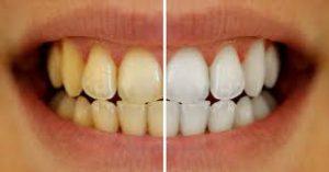 denti-gialli