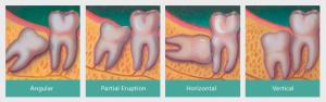 denti-inclusi