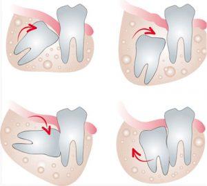 denti-inclusi2