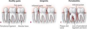 periodontite123