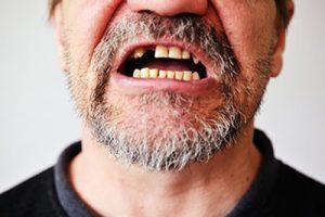 tariffe e costi cure dei denti