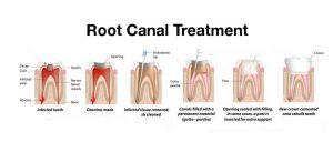 fasi per devitalizzare i denti
