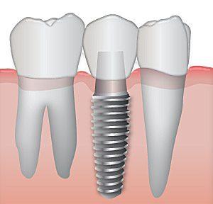 Impianto Dentale e Orale Prezzi, durata e rischi dell' Implantologia denti