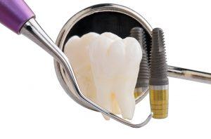Tecniche per Impianto Dentale a Carico Immediato Titanio e Zirconio