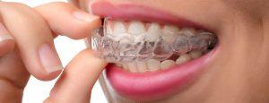 Preventivo dentista