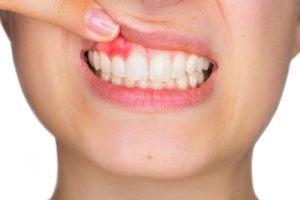 problemi ai denti e bocca