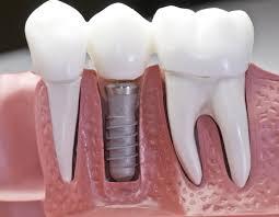 Impianto dentale quale scegliere