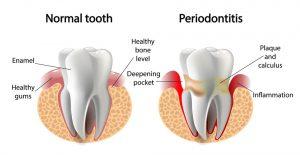 Parodontite come riconoscerla