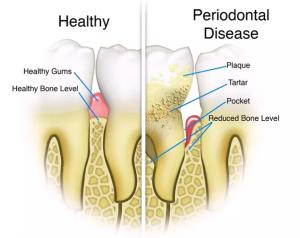 Cosa causa la Parodontite