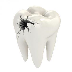 Dente Spezzato o Scheggiato