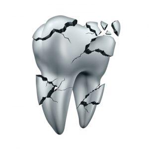 Problema Dente Spezzato o Scheggiato cosa fare