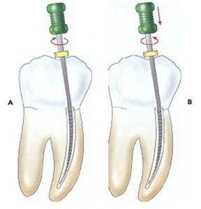 Dente appena devitalizzato fa male