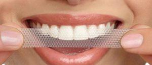 Strisce sbiancanti per i denti supermercato