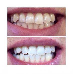Carbone attivo per sbiancare i denti come si usa e dove si compra