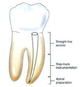 Cosa significa quando un dente è devitalizzato