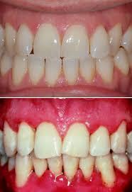 Placca dentale e gengivite